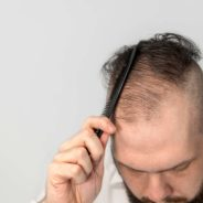 What's The Relation Between Coffee & Hair Loss?
